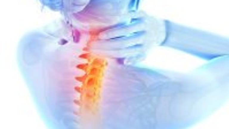 Osteoporosis: What You Need to Know About Current Treatment Guidelines