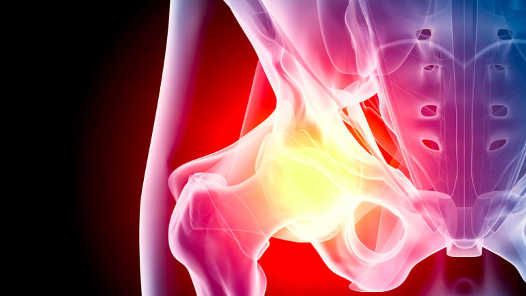 Understanding Hip Replacement - Is a new joint the answer to your pain?