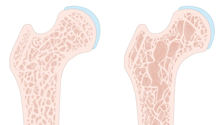 Prevention & Treatment of Osteoporosis